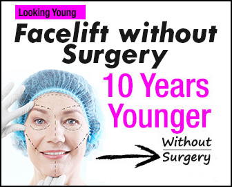 non surgical facelifts