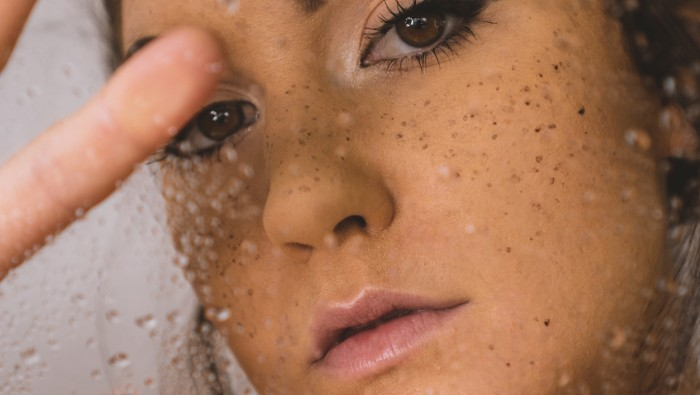 10 CHEMICAL-FREE SKINCARE TIPS FOR ACNE-PRONE SKIN