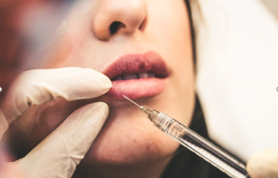 Botox – Unlocking the unspoken truth